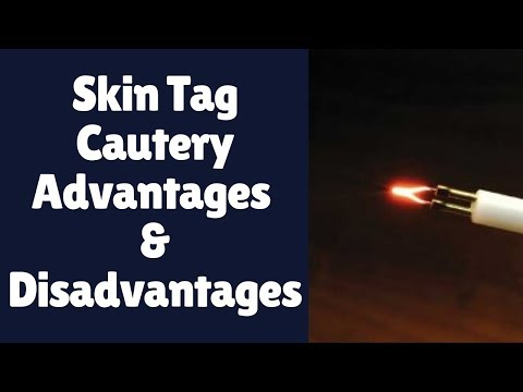 Skin Tag Cautery | Cauterizing Skin Tags: Advantages and Disadvantages