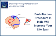 Embolization Procedure In India Will Increase Your Life Span
