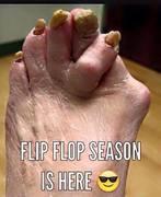 FlipFlopSeason