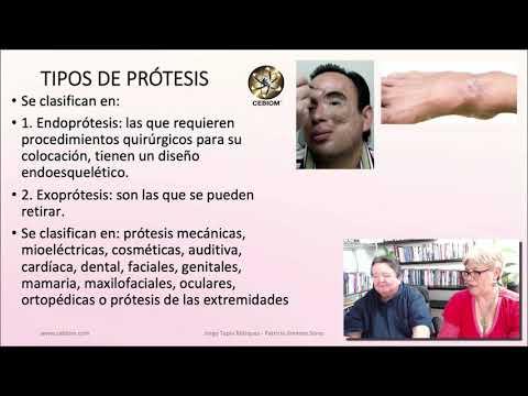 PROTESIS, BIOMAGNETISMO PAR BIO CONTRAINDICACIONES 2020