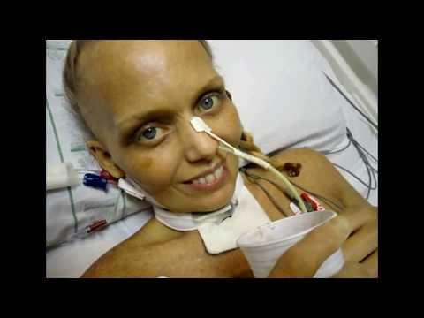 Bianca Toledo - Testemunho IMPACTANTE! Meses em COMA NA UTI