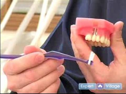 Brushing Care for Implants!