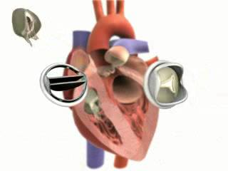 Jazzy amateur video for a heart valve replacement