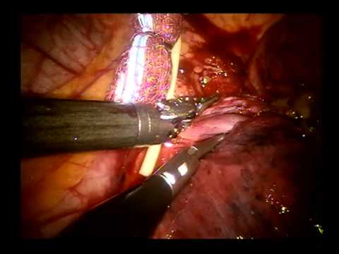 Robotic Pulmonary Lobectomy Left Upper Lobe