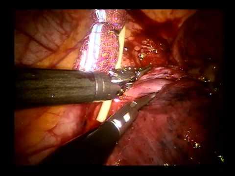 Robotic Pulmonary Lobectomy Left Upper Lobe