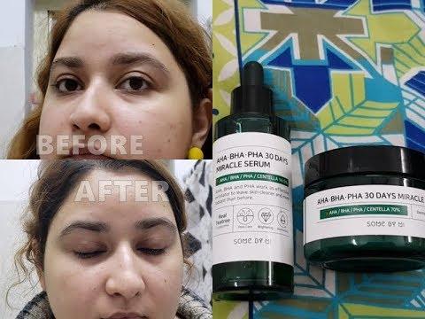 SOME BY MI AHA BHA PHA 30 Days Miracle Serum and Miracle Cream Review | Korean Skincare