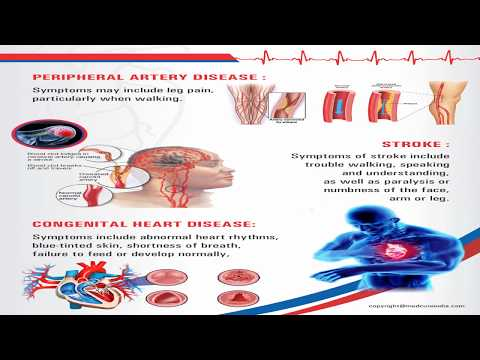 Find a Cardiologist Near You | Best Heart Doctors