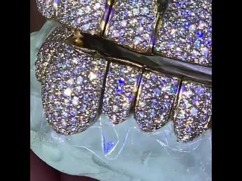 Diamond Grillz Teeth | Diamond Teeth Grillz | Grillz Diamond Teeth #Laviticus #DiamondGrillz #Grillz