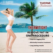 ThermiTight Skin Tightening Procedure in Delhi
