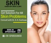 Get Solution for All Skin Problems at Kashyap Skin Clinic