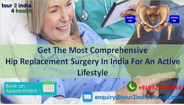 Get the Most Comprehensive Hip Replacement Surgery in India for An Active Lifestyle