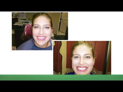 Brentwood Center For Cosmetic Dentistry : Dental Implants in West Los Angeles CA