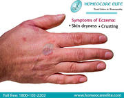 Cure Eczema Effectively With Homeopathy