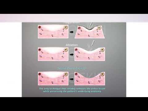 Seckin Endometriosis Treatment Surgery Center
