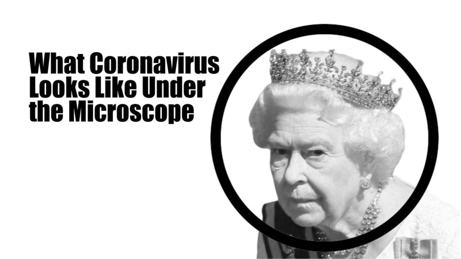queen-microscope-coronavirus