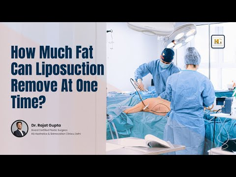 How much Fat can Liposuction Remove at 1setting? | Dr Rajat Gupta, Plastic Surgeon, Delhi