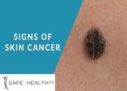 Skin Cancer Diagnosis & Treatment - Safe Health