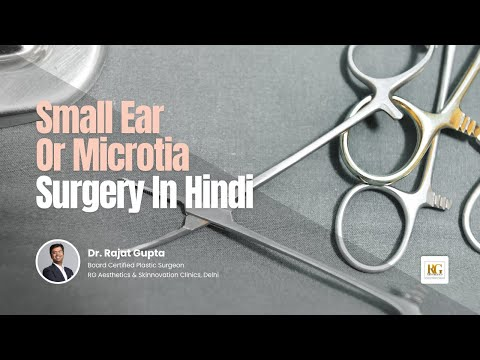 Small Ear Reconstruction Surgery In Hindi | Micrortia | Dr Rajat Gupta, Plastic Surgeon, Delhi