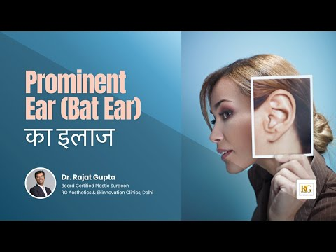 Prominent ear (Bat ear) का इलाज | Big Ear Problem | Otoplasty | Dr Rajat Gupta Plastic Surgeon Delhi