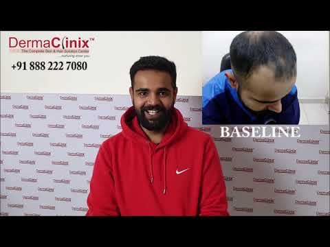 Hair Transplant Review India by Patient After 10 Months (Post Surgery) - DermaClinix