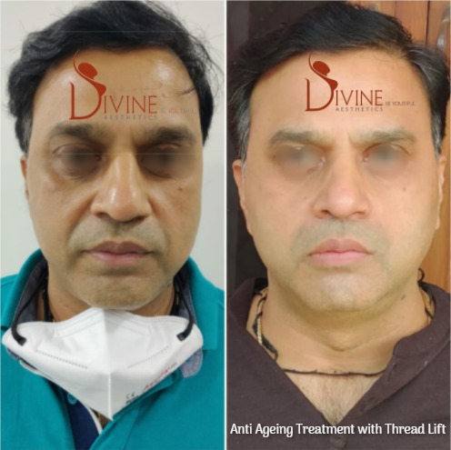 Anti Aging Treatment with Thread lift