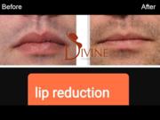 Lip Reduction watermark