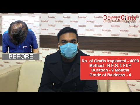 Hair Transplant in Delhi | Best Hair Transplant | Dr Amrendra Kumar- Hair Transplant Doctor in Delhi