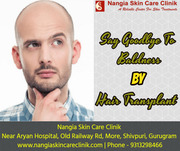 Say Goodbye To Baldness by Hair Transplant