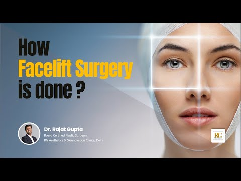 How Facelift Surgery is done ? | Rhytidectomy | Facelift | Dr Rajat Gupta RG Aesthetics