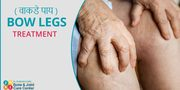 Bow-Knee-treatment|Painless & Stitchless Knee Replacement Surgery In Mulund