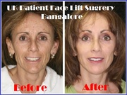 A Boon of UK Patient For Face Lift Surgery in Bangalore