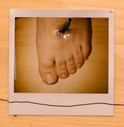 alan's foot