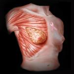 Hands-On Breast Ultrasound Imaging & Doppler 2014