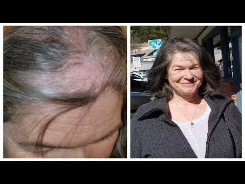 Emotional Wig Transformation for Lichen Plano Pilaris Client