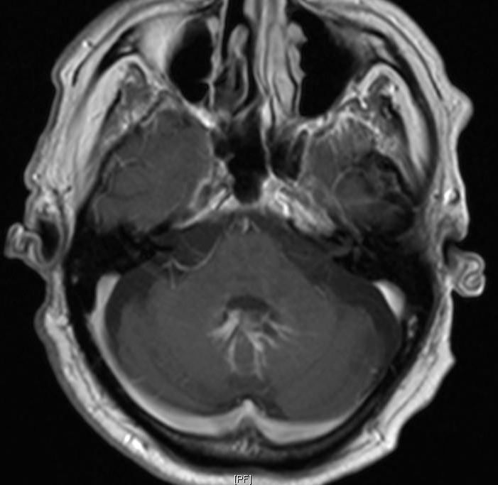 Cerebellar Developmental Venous Anomaly