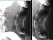 Ulcerating mucosa in begining of ULC