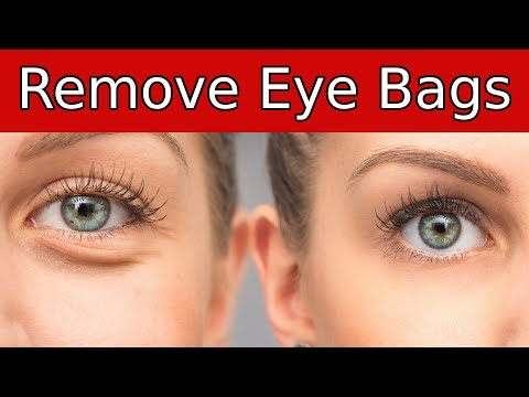 The No Nonsense Guide On How To Get Rid Of Bags Under Your Eyes