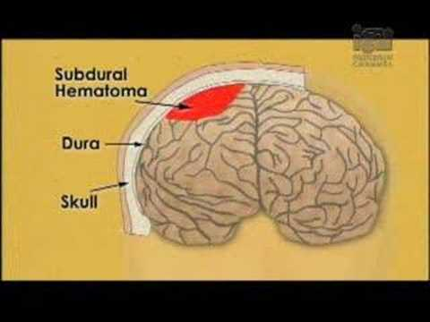 Turn down the lights Turn up the lights Change Player Size Watch this video in a new windowLiving With Traumatic Brain Injury