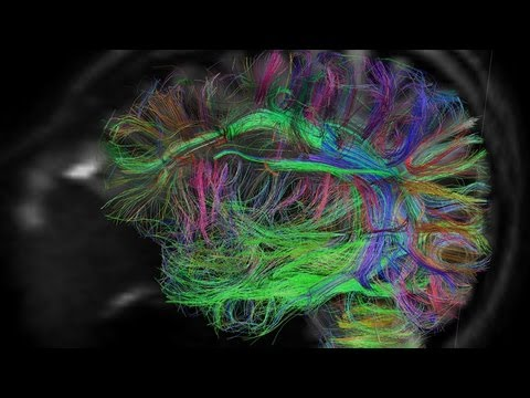 Want to Upload Your Brain? Science Fiction Comes to Life