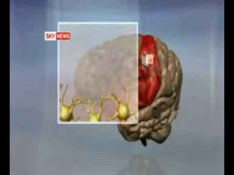 Brain Chip Implant Uses Power Of Thought