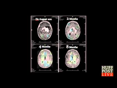 Cannabis oil cures baby of an Inoperable Brain Tumor says Dr.William Courtney cureyourowncancer.org