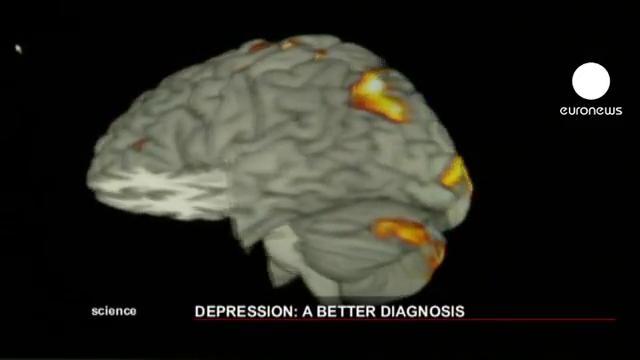 La depresion modifica la estructura cerebral