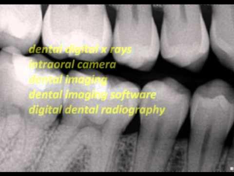 Dental Digital X Ray