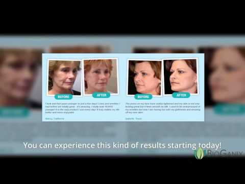 Phytoceramides Before And After Photos [REAL UNDENIABLE PROOF!]