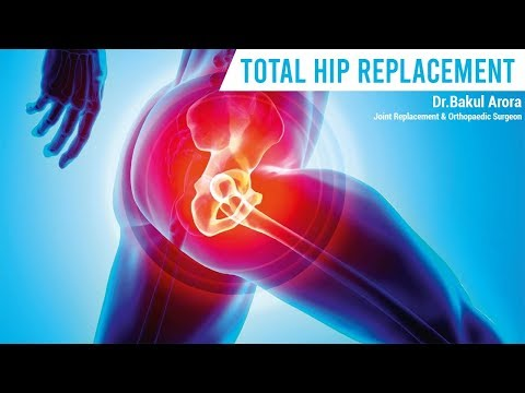 MINIMALLY INVASIVE HIP REPLACEMENT SURGEON | TOTAL HIP REPLACEMENT SURGERY | DR BAKUL ARORA | THANE