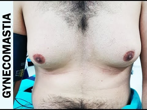 Male Breast Reduction Gynecomastia Surgery in Delhi India by Dr. Ajaya Kashyap