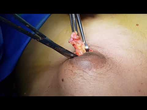 Gynecomastia Gland Removal Surgery RESULTS !! by Dr. Ajaya Kashyap, Delhi, India