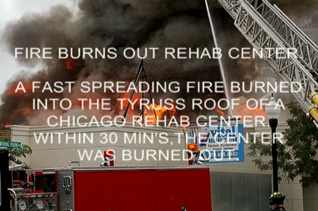 REHAB CENTER BURNS
