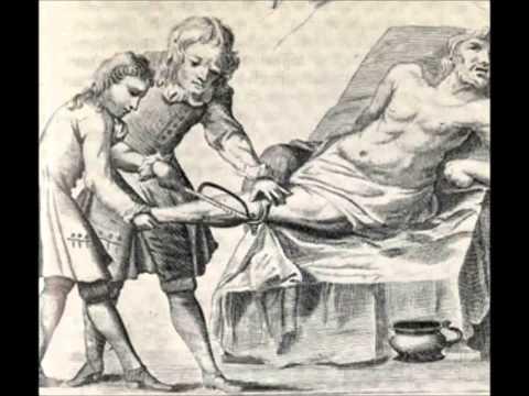 Ραγδαίος Ακρωτηριασμός-Η Πραγματικότητα Της Αμαρτίας