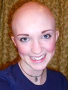 Pretty Bald Me